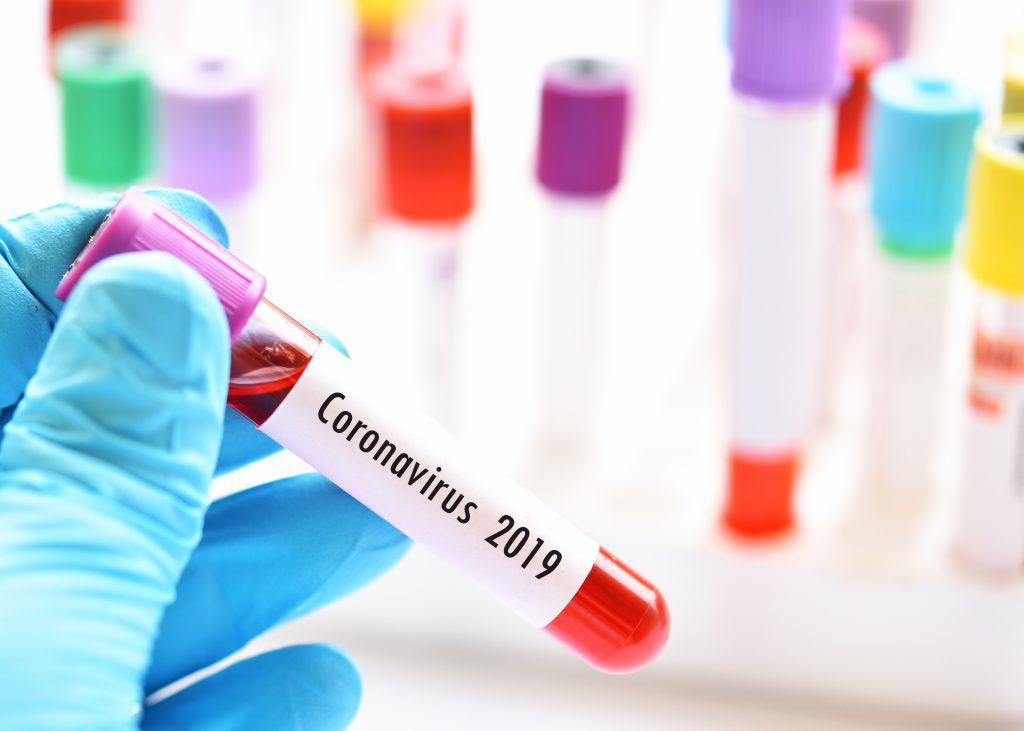 ตระหนัก เรียนรู้ ป้องกันไวรัสโคโรนาสายพันธุ์ใหม่ 2019