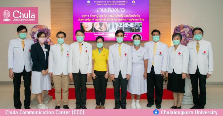 จุฬาฯ รักษาผู้ป่วยโรคผิวหนังแข็งที่มีปอดเป็นพังผืด ด้วยการปลูกถ่ายสเต็มเซลล์สำเร็จครั้งแรกในประเทศไทย
